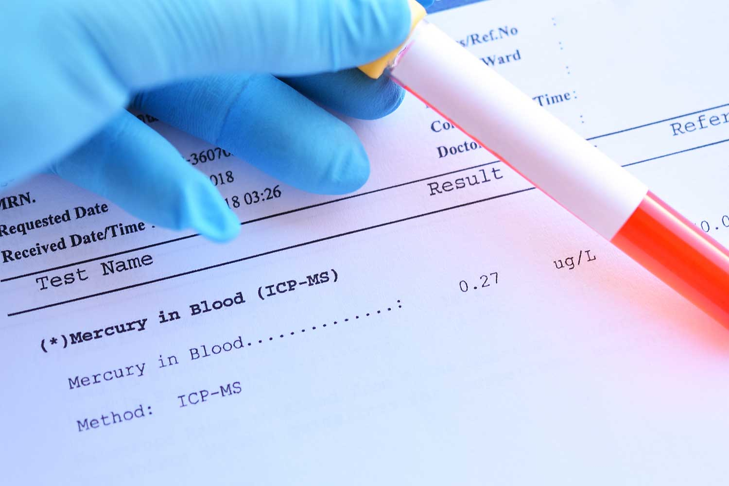 Blood sample tube with normal mercury test result